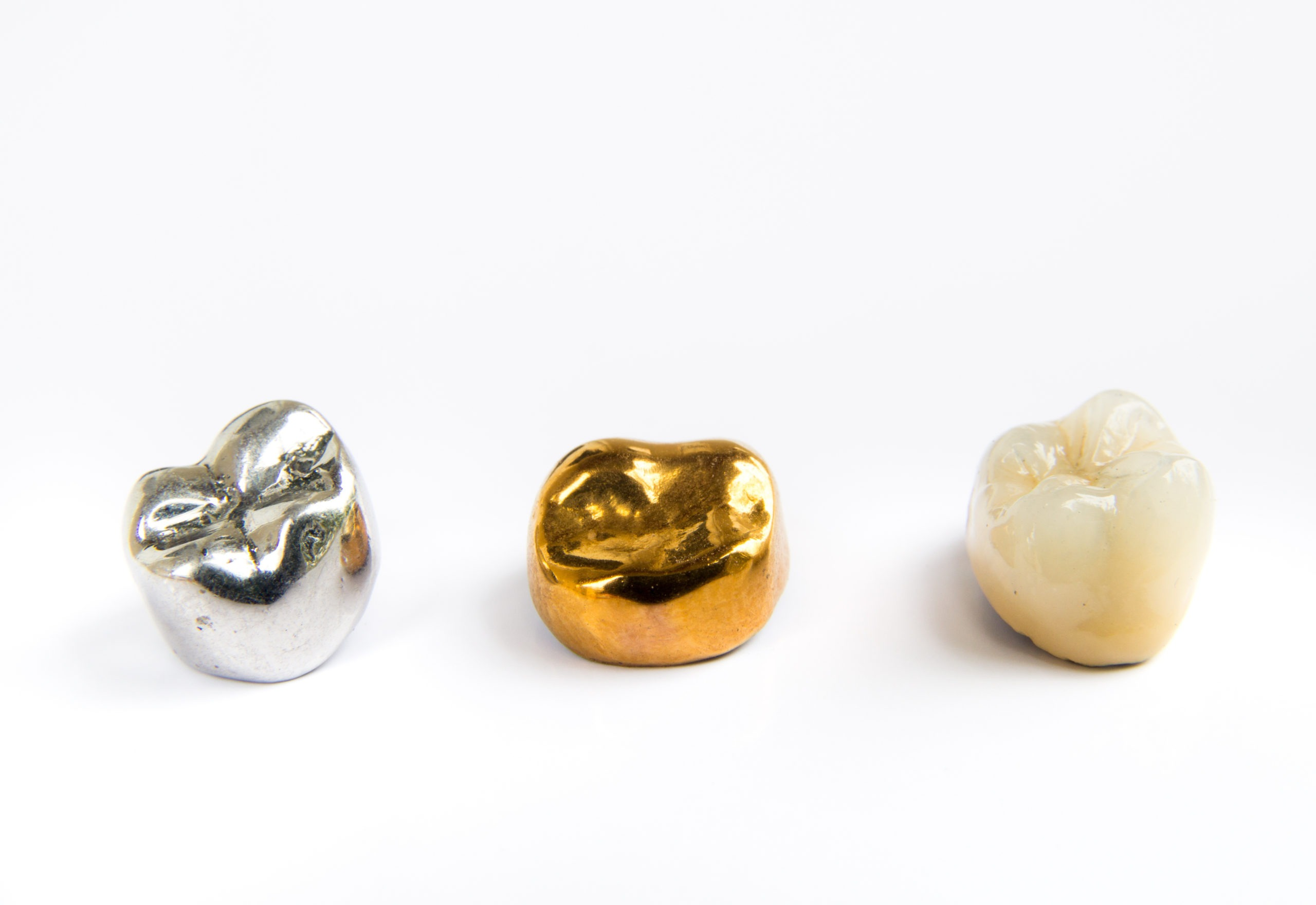 Dental gold is valuable, and the process of selling dental gold is much easier than you may think.